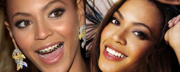 celebridades-brackets10
