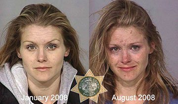 Antes y después del abuso de alcohol y drogas. Impactante