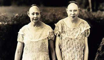 20 Fotos de antiguas estrellas del circo que se convertirán en tus pesadillas. ¡Madre mía!