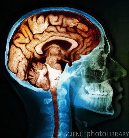 efectos-cerebro12