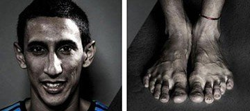 Así acaban los pies de un futbolista profesional ¡Guau!