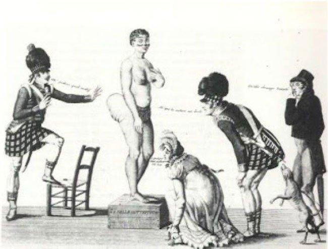 zoologico-humano-francia6
