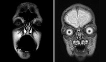 Algo inesperadamente terrorífico ocurre cada vez que se hace una resonancia magnética.