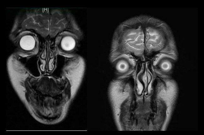 imagen-resonancia-magnetica2