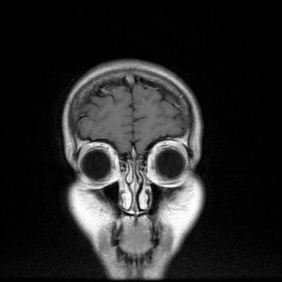 imagen-resonancia-magnetica3